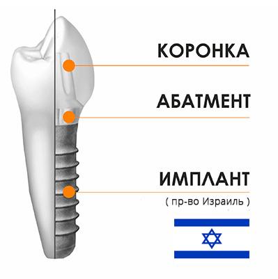 имплант под ключ