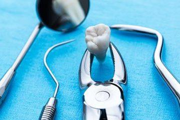удаление зуба недорого